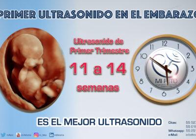 Ultrasonido Primer Trimestre